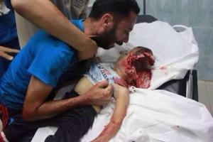 israel-attack-on-gaza 2